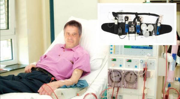 کلیه مصنوعی پوشیدنی برای بیماران دیالیزی